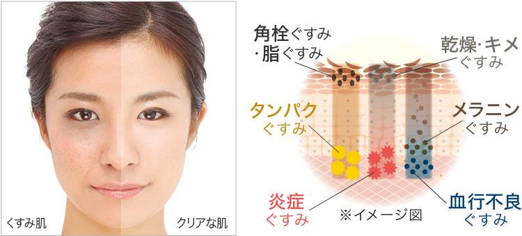 肌ムラのメカニズムイメージ図